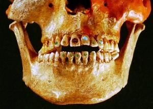 hiasan batu permata pada gigi Suku Aztek dan suku Maya